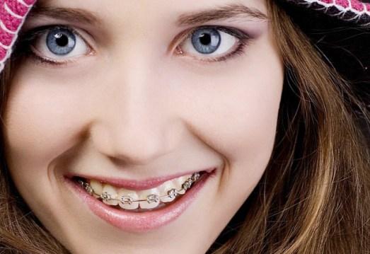niềng răng là gì
