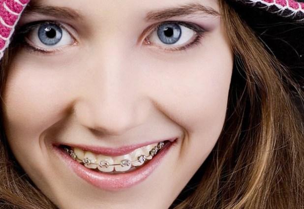 niềng răng hô