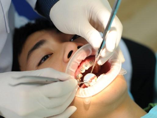 niềng răng trả góp