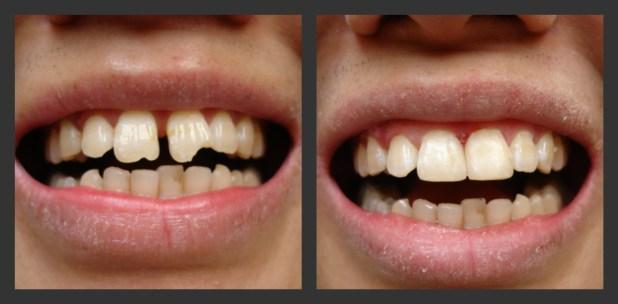 răng bị khấp khểnh lệch lạc
