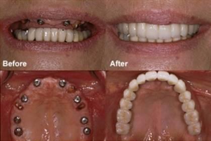 Implant-rang-2