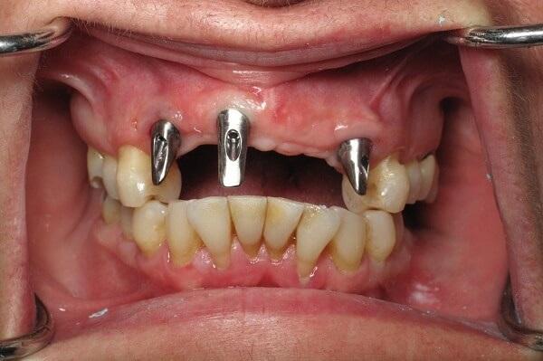 cay ghep rang implant co tot khong 1 - Trồng răng implant loại nào rẻ nhất hiện nay?