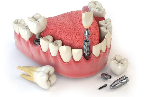 Kết quả hình ảnh cho cấy implant