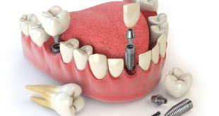 Trồng răng implant có kèm răng sứ không?