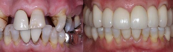 trong rang implant dep co nao - Trồng răng implant loại nào rẻ nhất hiện nay?