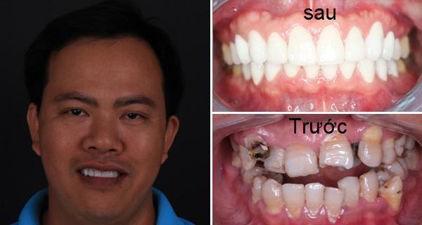 boc rang su o dau tot tai quan 56 - Làm răng ở đâu tốt nhất Hà Nội