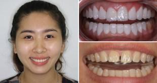 Bọc răng sứ katana có tốt không và giá làm răng sứ bao nhiêu?