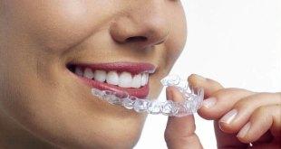 Niềng răng 3D Clear giá bao nhiêu và hiệu quả như thế nào