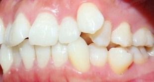 Răng hô có thể thay bằng răng sứ được không