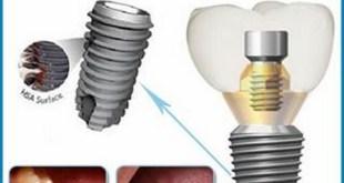 Cấy ghép Implant Hàn Quốc có tốt?