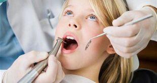 Niềng răng là gì, có tác dụng gì, giá bao nhiêu?