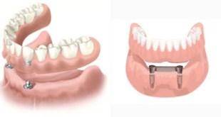 Mất 3 răng cần cấy bao nhiêu trụ implant