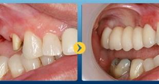 Phương pháp trồng 3 răng liên tiếp chắc chắn mà an toàn