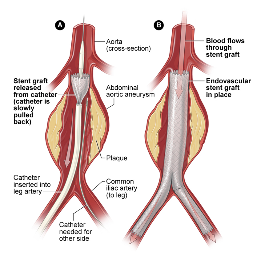 hight resolution of illustration of aortic aneurysm repair