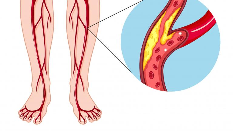 diagram illustration of peripheral arterial disease [ 3817 x 2147 Pixel ]