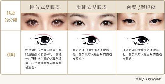 雙眼皮.韓式無痕縫雙眼皮 讓眼睛自然放大變得更有神!︱米蘭時尚診所
