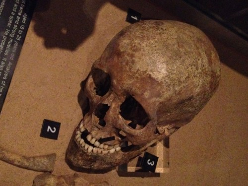 Jorvik Skull of male aged 16-25 showing battle injuries.