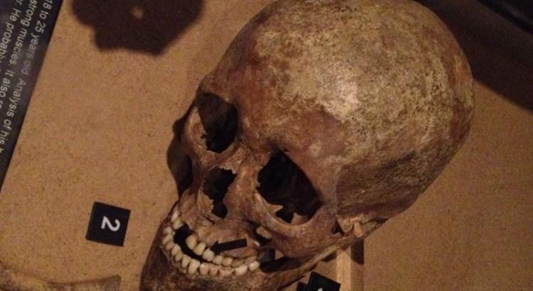 Jorvik Skull of male aged 16-25 showing battle injuries.