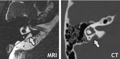 Enlarged Vestibular Aqueducts and Childhood Hearing Loss ...