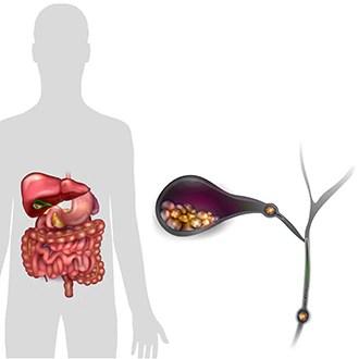 symptoms causes of gallstones