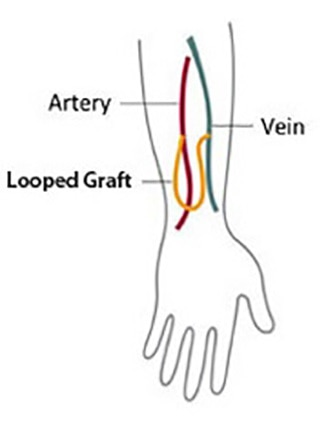 Drawing of a vein and an artery in an arm connected by a looped graft.