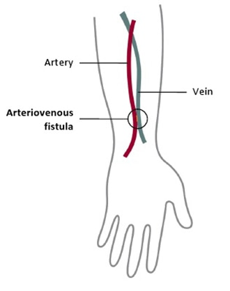 Drawing of an arm shows arteriovenous fistula connecting an artery and vein.