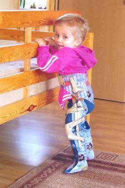 Na zdjęciu: mała Natalka w aparacie