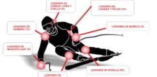 Cualquier dolor o lesión se puede evitar con la órtesis adecuada