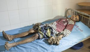 man-suffering-from-rare-condition-nigerian-infopedia-3