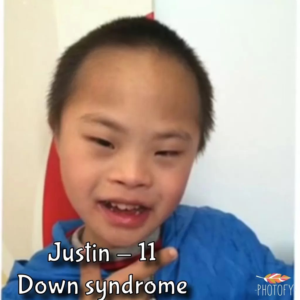 black chinese down syndrome