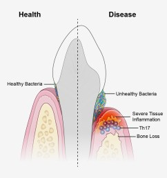 a new study suggests that periodontal disease is driven by th17 immune cells which are [ 1485 x 1230 Pixel ]