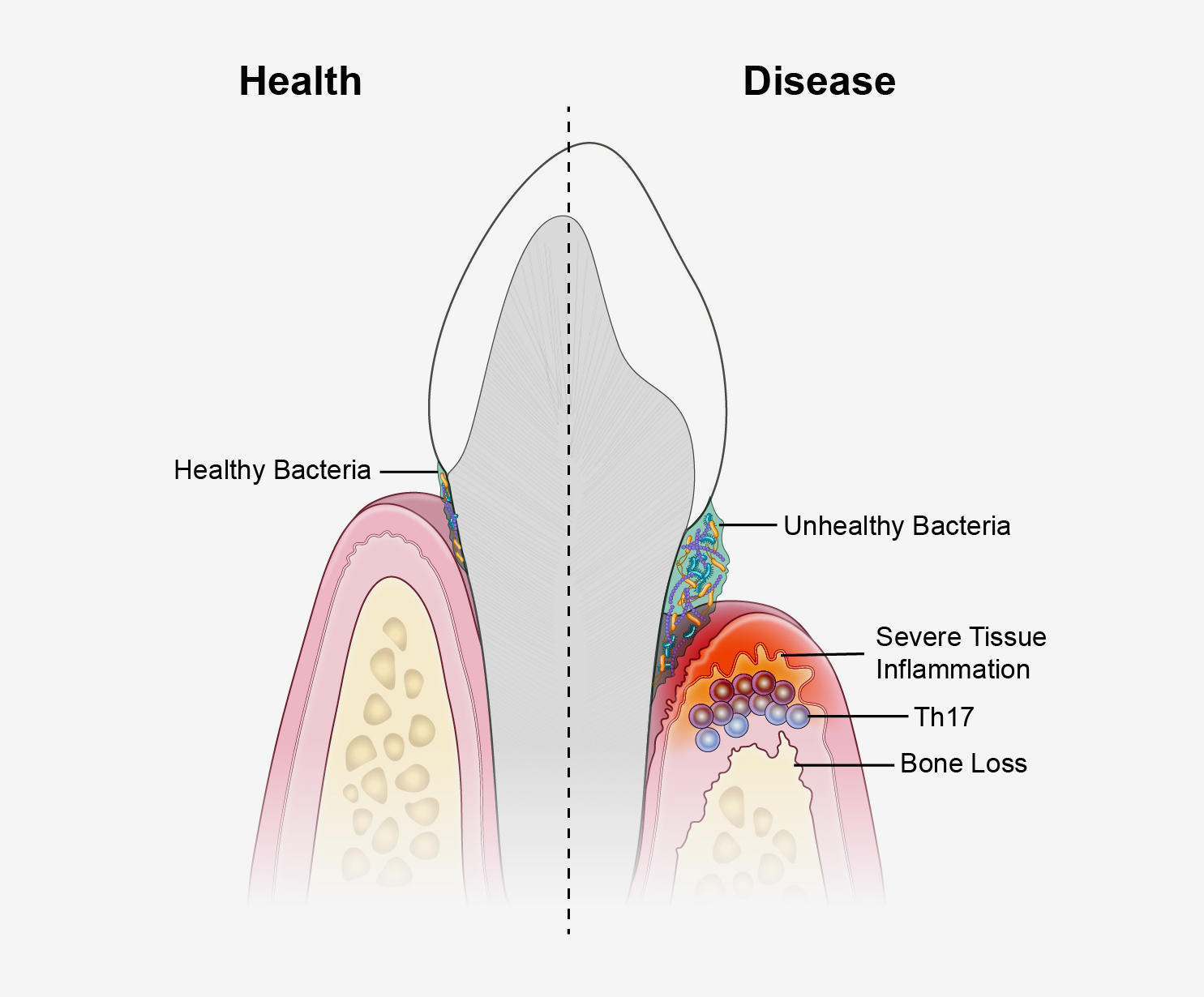 hight resolution of a new study suggests that periodontal disease is driven by th17 immune cells which are