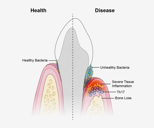 small resolution of a new study suggests that periodontal disease is driven by th17 immune cells which are