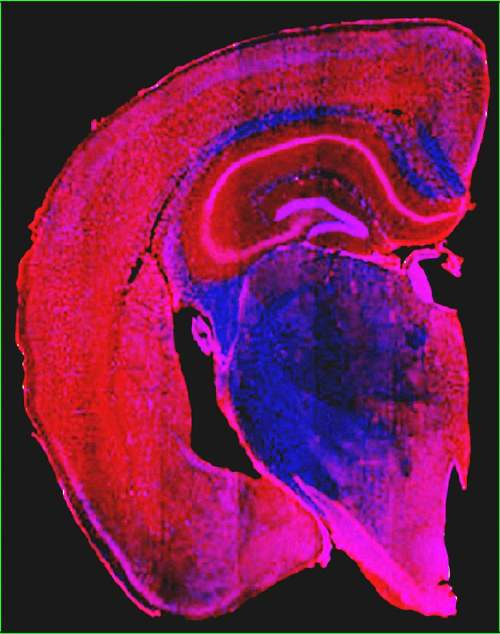 Image of a mouse brain scan