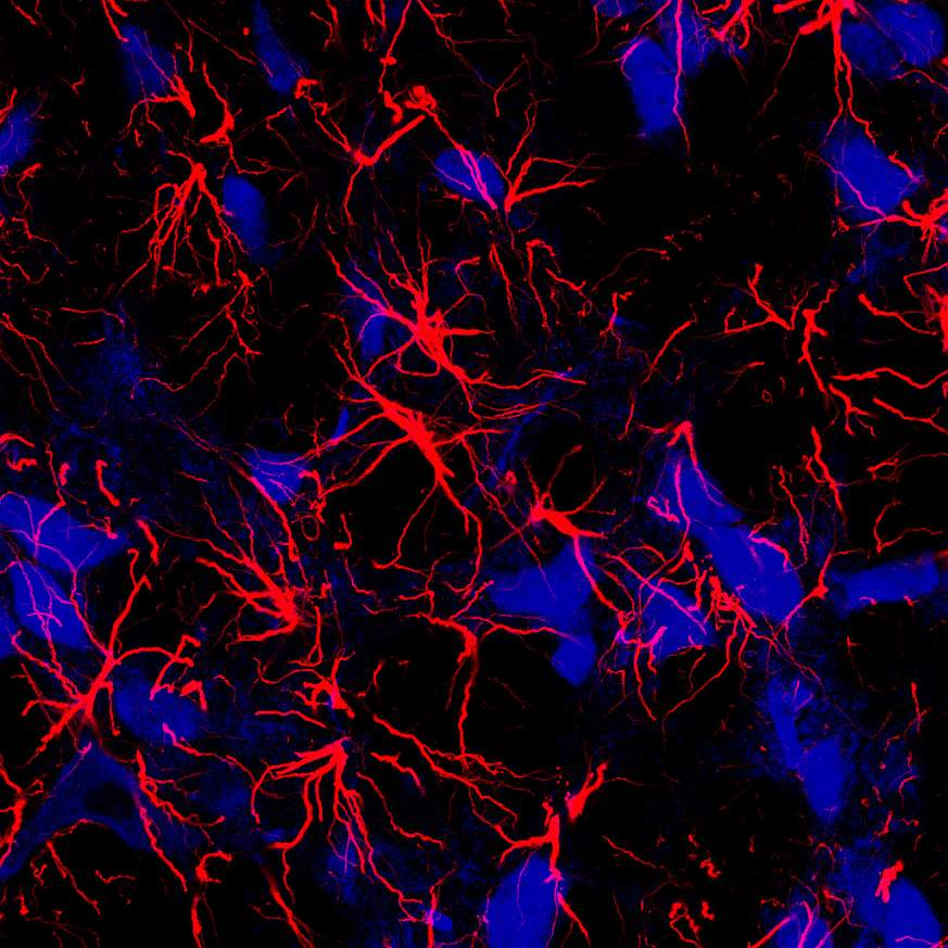 star-shaped brain cells, called astrocytes (red)