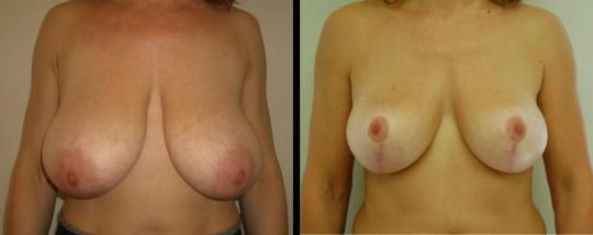 plastic_surgery_breast_reduction_6