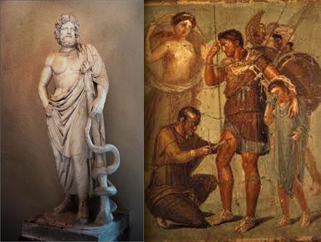 Asklepios-Epidauros_M