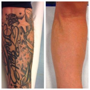 ninofavoriti-rimozione-tatuaggi