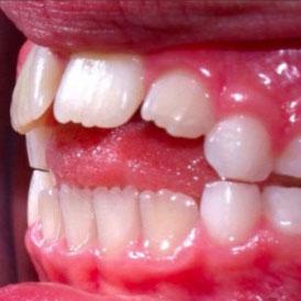 Thumb Sucking Teeth