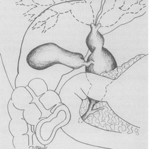 New Jersey Liver & Pancreas Surgery