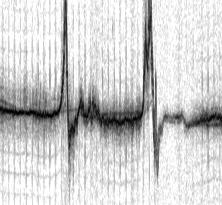 Dopplergram