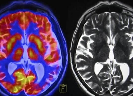 Kronik Stres Beynimizi Nasıl Etkiliyor? Beyne Verdiği Zararı Nasıl Azaltabiliriz?