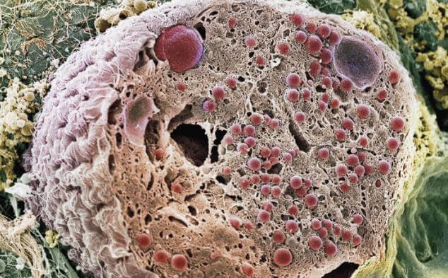 pankreas hücreleri