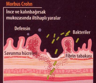Morbus Crohn