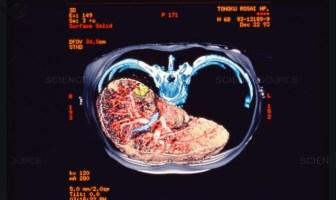 karaciğer tarama