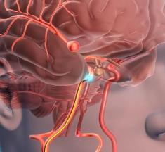 Beyin Anevrizması Nedir? Nasıl Oluşur? Belirtileri Riskleri ve Tedavisi