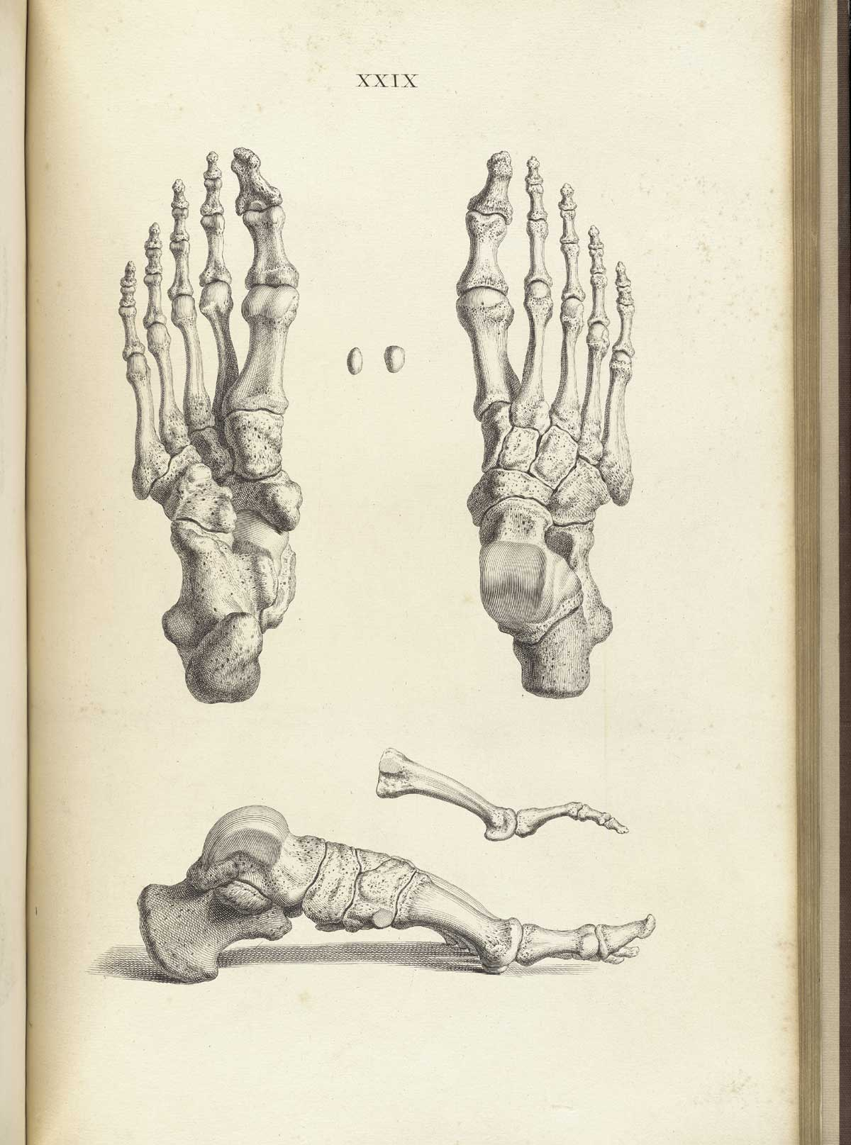 hight resolution of engraving showing three views of the bones of the foot upper right the foot from