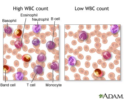 White blood cell count - series: MedlinePlus Medical ...