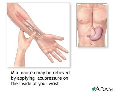 Nausea acupressure: MedlinePlus Medical Encyclopedia Image