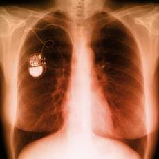 X-ray of heart pacemaker